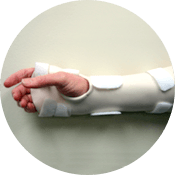 Carpal Tunnel Splint with the MCP joints included Carpal Tunnel Splint with the MCP joints included