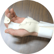 Static Progressive Splint