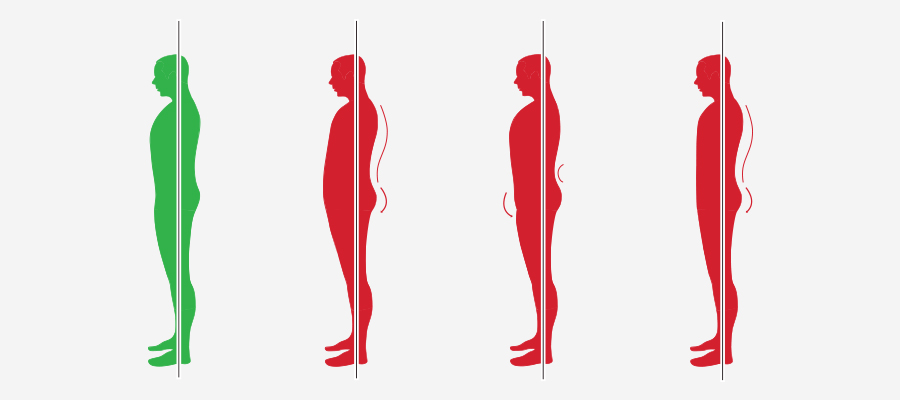 Posture types including, ideal posture and non ideal posture types