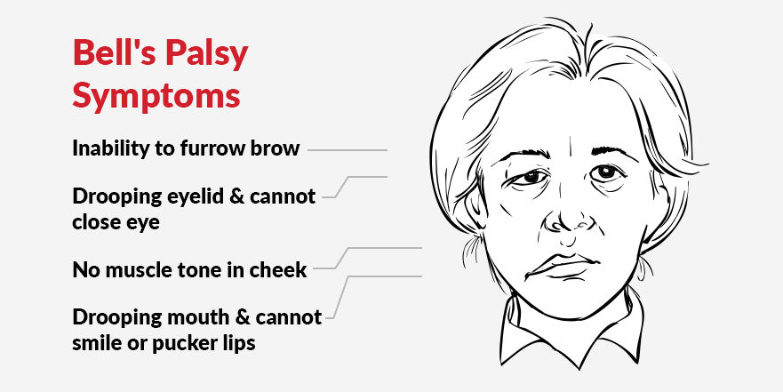 bells palsy symptoms inclue drooping eyelids and inability to blink, inability to furrow brow, dropping lips with inability to pucker lips or smile. Symptoms are usually to one side of the face only