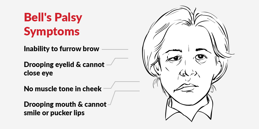 Drooping Face: How to Treat Bell's Palsy with Physiotherapy