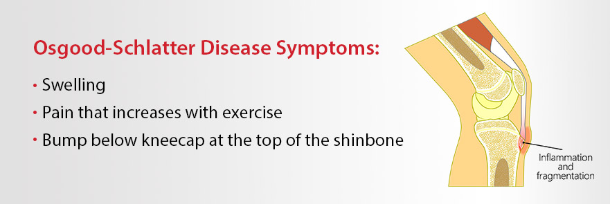 Osgood-Schlatter Disease Symptoms. Pain that increases with exercise Swelling A bump below the kneecap at the top of the shinbone.