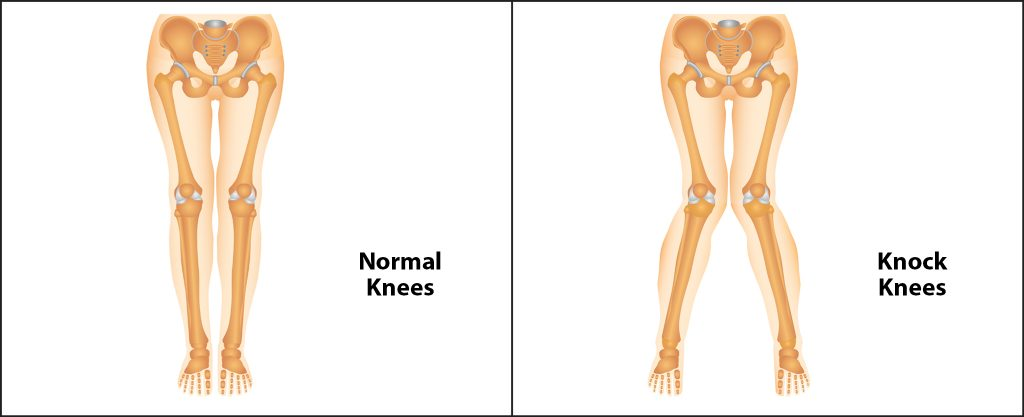 Illustration of Knock Knees vs Illustration of normal knees