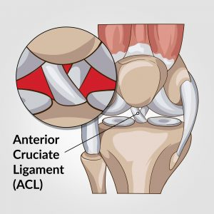 Illustration of knee anatomy showing the location of the Anterior Cruciate Ligament or ACL