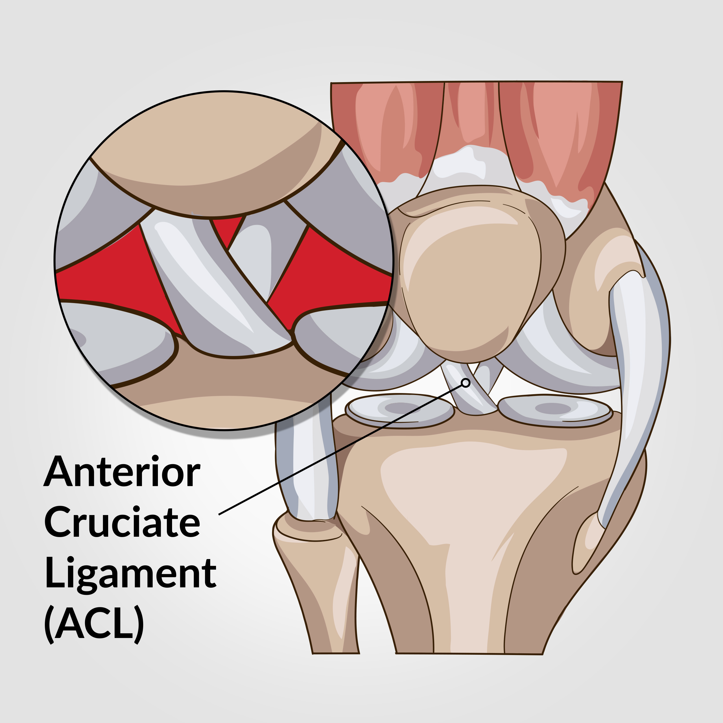 the crucial ligaments diagnosis and treatment of ligamentous injuries about the knee