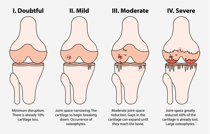 Diagram of knee joint illustrating how the osteoarthritis affects the cartilage in different stages of the disease.