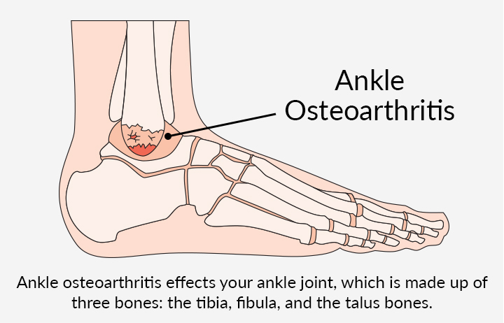 Diagram of Ankle Osteoarthritis. Ankle osteoarthritis effects your ankle joint, which is made up of three bones: the tibia, fibula, and the talus bones.