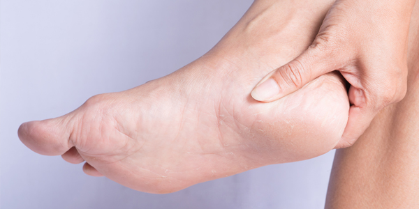 photograph of a woman holding her heel due to heel pain