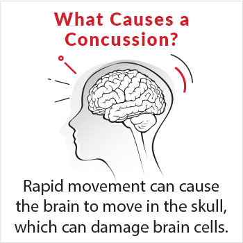 Image of what causes a concussion. Rapid movement can cause the brain to move in the skull, which can damage brain cells.