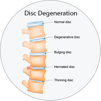 Medical diagram of a spine showing a normal disc, a degenerative disc, a bulging disc, a herniated disc, and a thinning disc.
