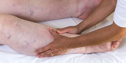 picture of professional performing manual lymphatic drainage