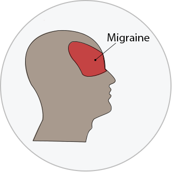 medical illustration of the location of a migraine headache over the eyes in the front of the face