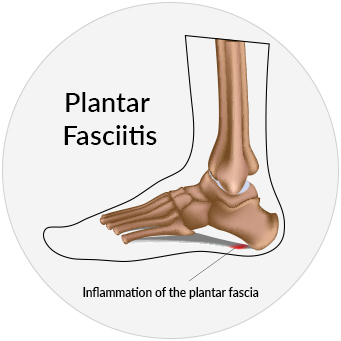 Medical illustration of an inflamed plantar fascia due to plantar fasciitis