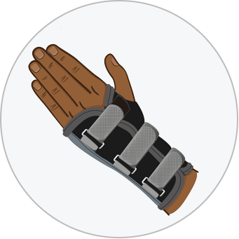 illustration of a hand wearing a brace due to carpal tunnel syndrome a repetitive strain injury