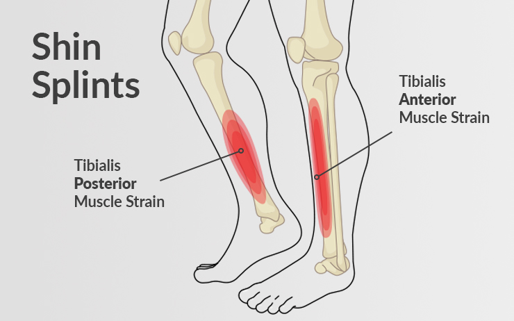 A medical diagram showing shin splints, both tibialis posterior muscle strain and the tibialis anterior muscle strain