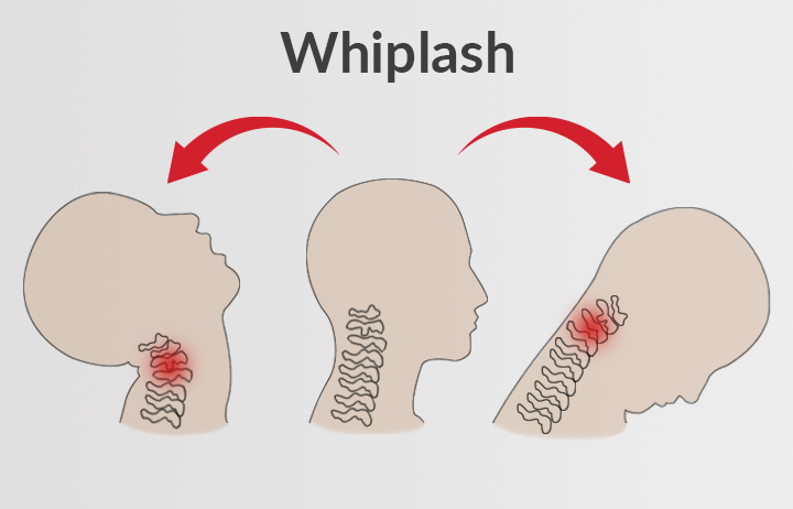 Medical illustration of a neck injury from Whiplash showing whiplash associated disorder (WAD).