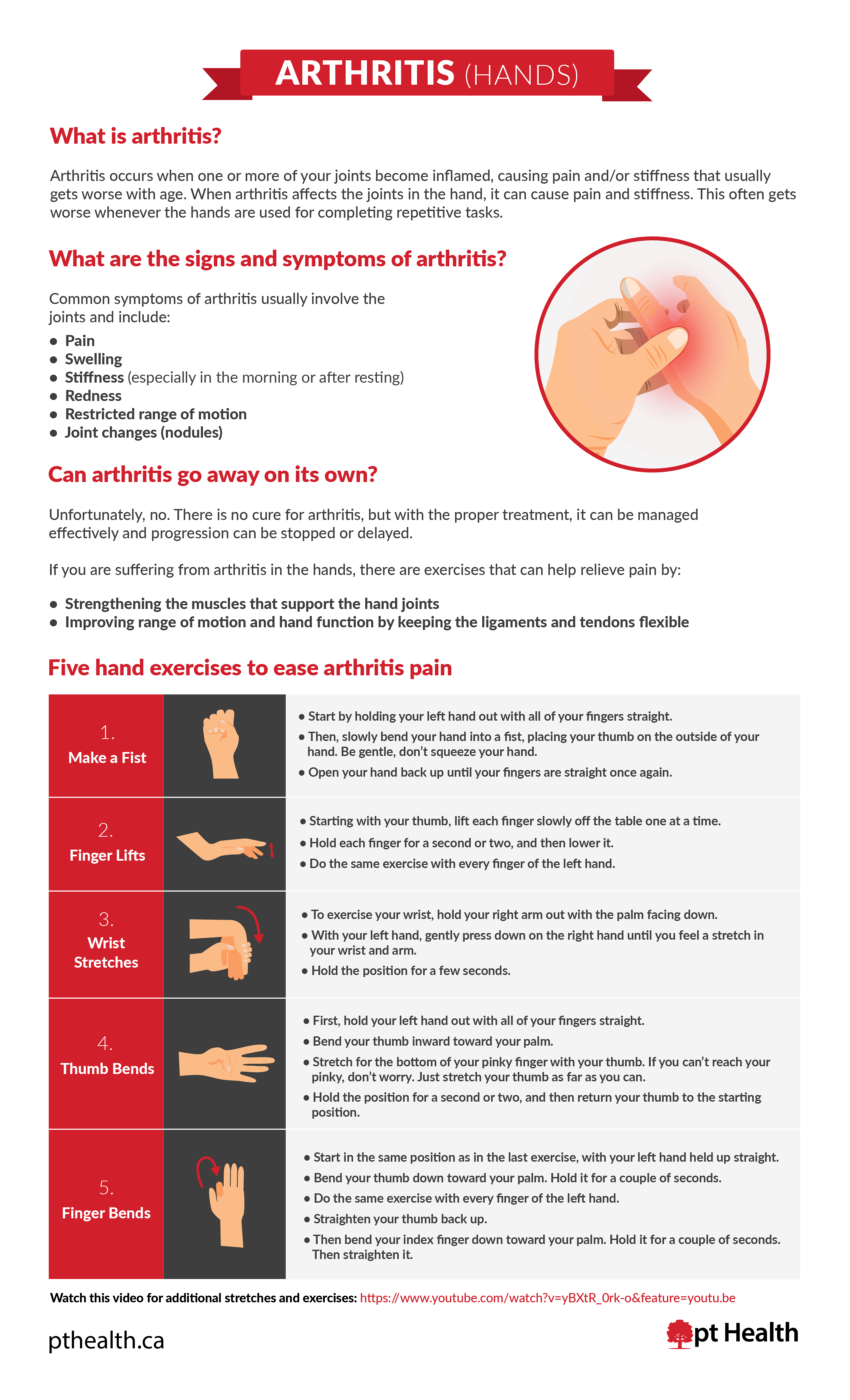 Five Hand Exercises to Ease Arthritis Pain