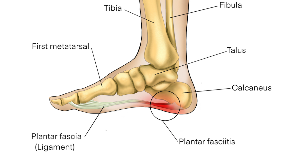 Understanding Plantar Fasciitis: What can I do to treat it at home?